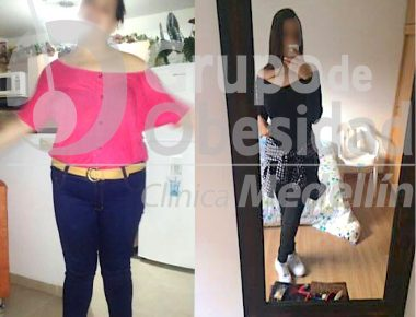before and after gastric balloon