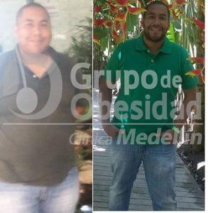 balon gastrico antes y despues