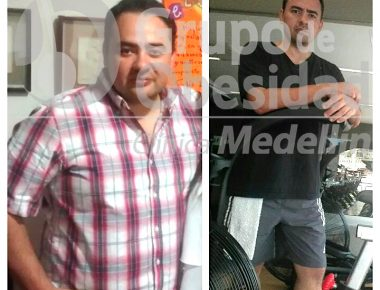 balon gastrico antes y despues
