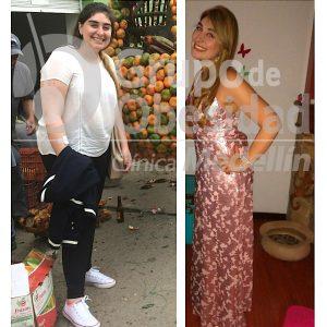 antes y despues balon gastrico