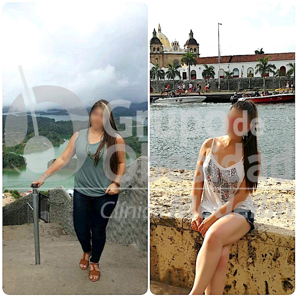 antes y despues del balon gastrico