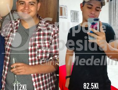 foto antes y despues juan camilo copy