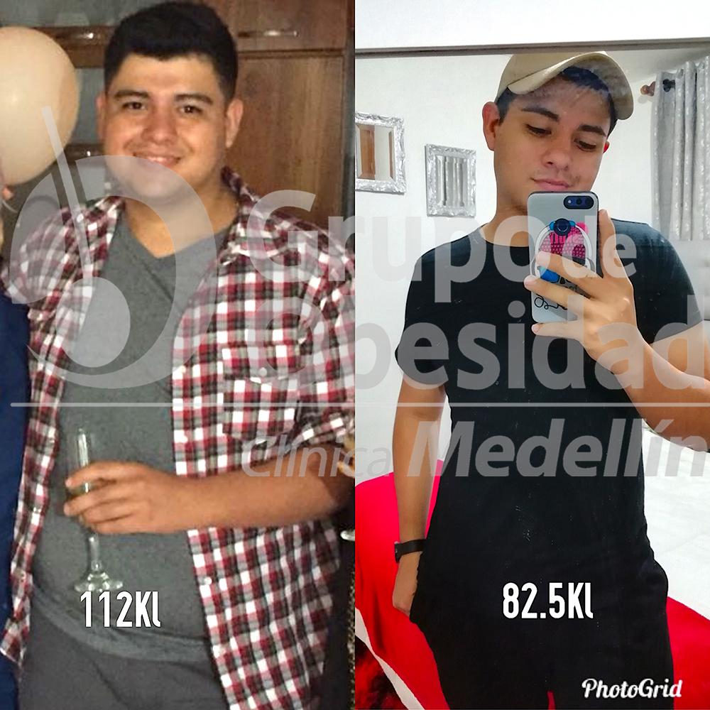 foto antes y despues juan camilo copy