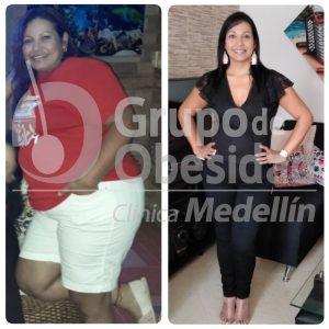 balon gastrico resultados
