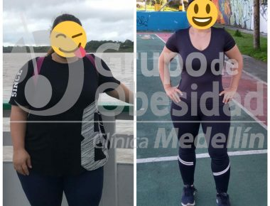 foto antes y despues