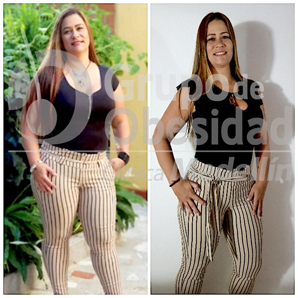 balon gastrico Foto antes y despues